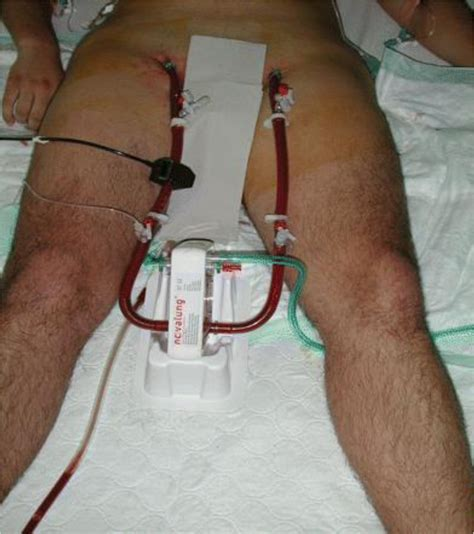 Extracorporeal life support devices and strategies for